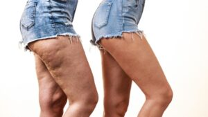 how-to-reduce-buttocks-and-thighs-in-a-week